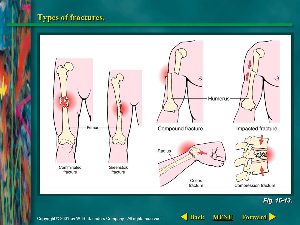 Copyright © 2001 by W. B. Saunders Company. All rights reserved. Types of fractures. Fig. 15-13. Forward Back MENU