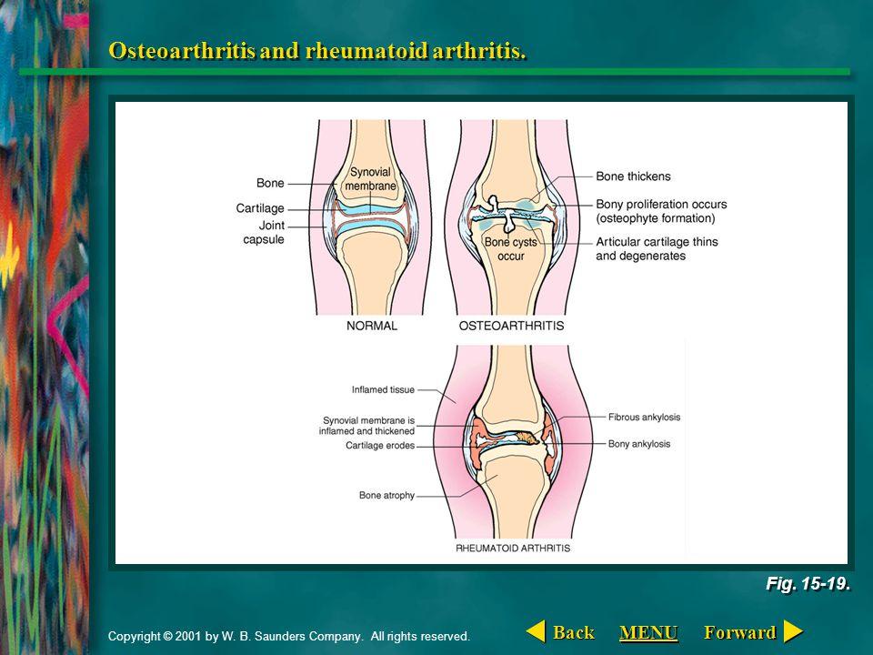 Copyright © 2001 by W. B. Saunders Company. All rights reserved. Osteoarthritis and rheumatoid arthritis. Fig. 15-19. Forward Back MENU