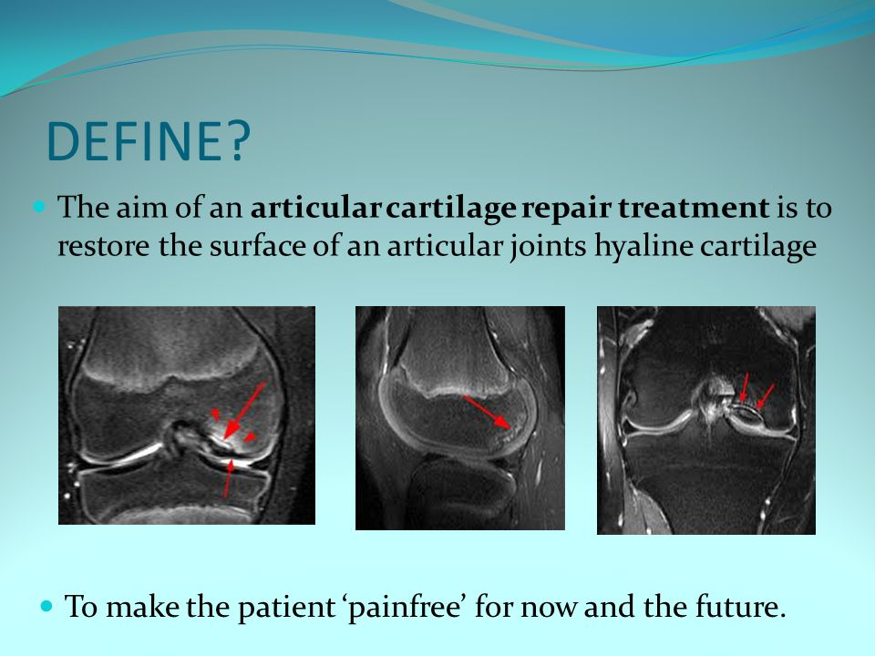 DEFINE? The aim of an articular cartilage repair treatment is to restore the surface of an articular joints hyaline cartilage To make the patient 'pai