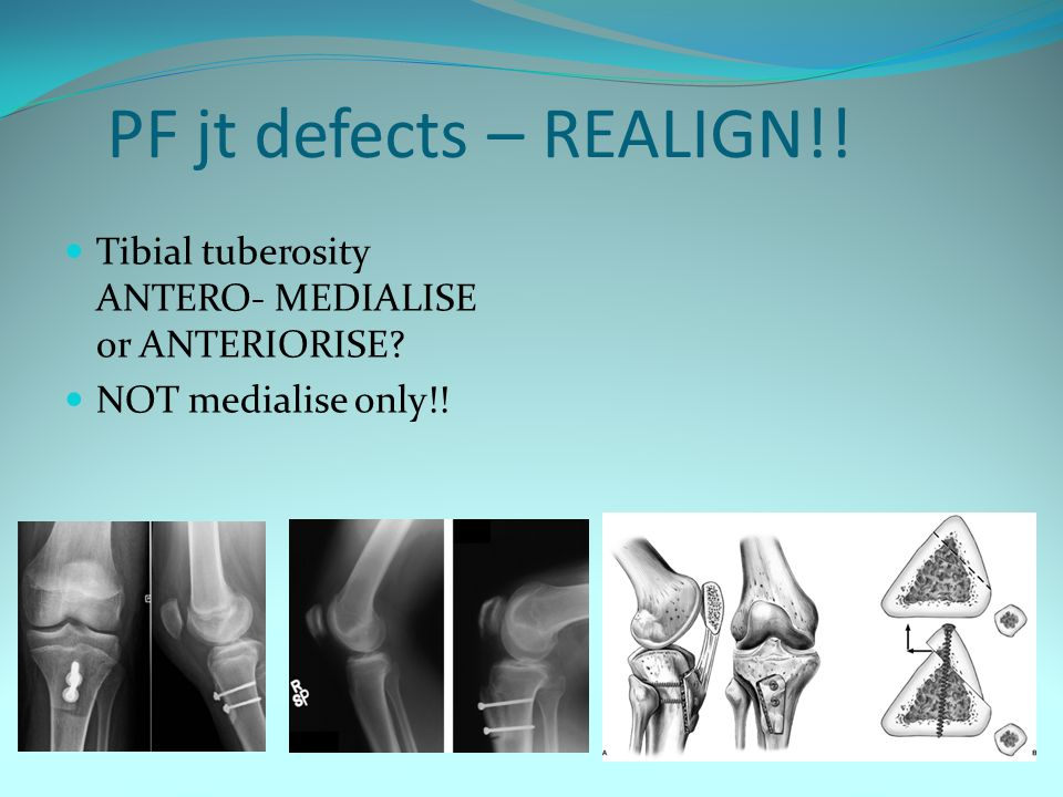 PF jt defects – REALIGN!! Tibial tuberosity ANTERO- MEDIALISE or ANTERIORISE? NOT medialise only!!