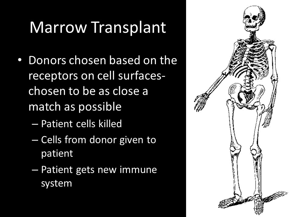 Marrow Transplant Donors chosen based on the receptors on cell surfaces- chosen to be as close a match as possible – Patient cells killed – Cells from donor given to patient – Patient gets new immune system