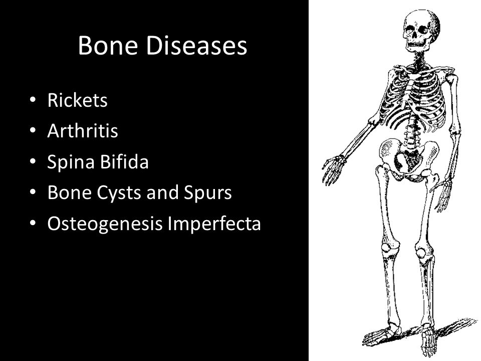 Bone Diseases Rickets Arthritis Spina Bifida Bone Cysts and Spurs Osteogenesis Imperfecta