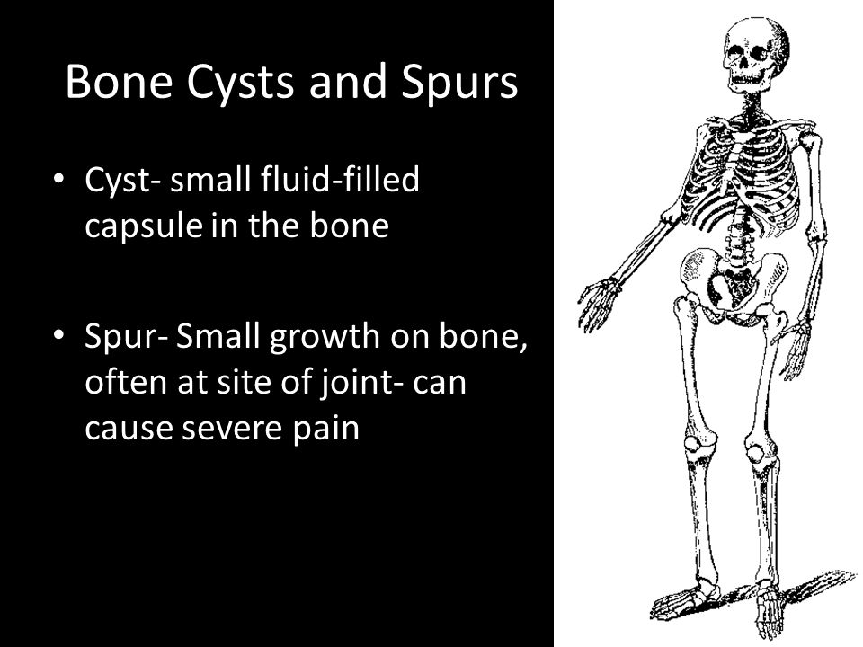 Bone Cysts and Spurs Cyst- small fluid-filled capsule in the bone Spur- Small growth on bone, often at site of joint- can cause severe pain