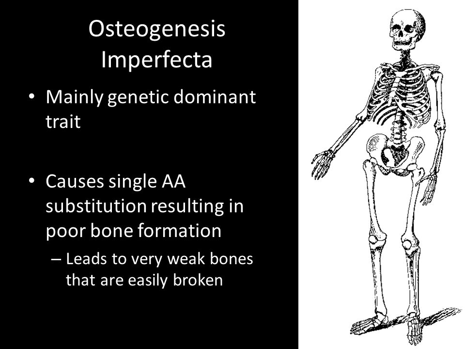 Osteogenesis Imperfecta Mainly genetic dominant trait Causes single AA substitution resulting in poor bone formation – Leads to very weak bones that are easily broken