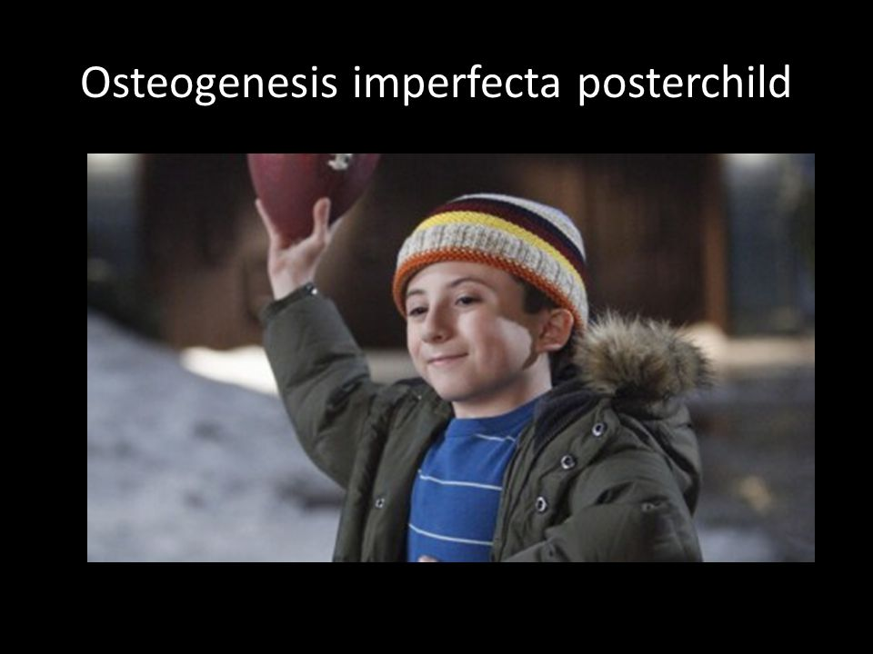 Osteogenesis imperfecta posterchild