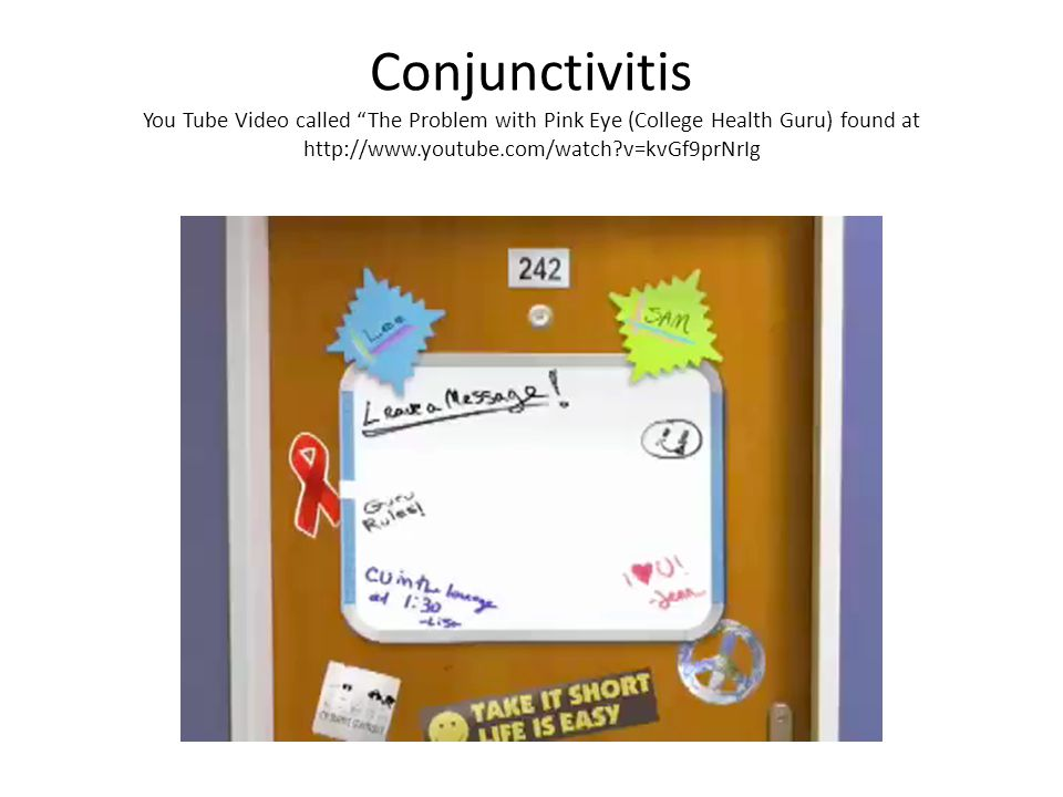 """Conjunctivitis You Tube Video called """"The Problem with Pink Eye (College Health Guru) found at http://www.youtube.com/watch?v=kvGf9prNrIg"""