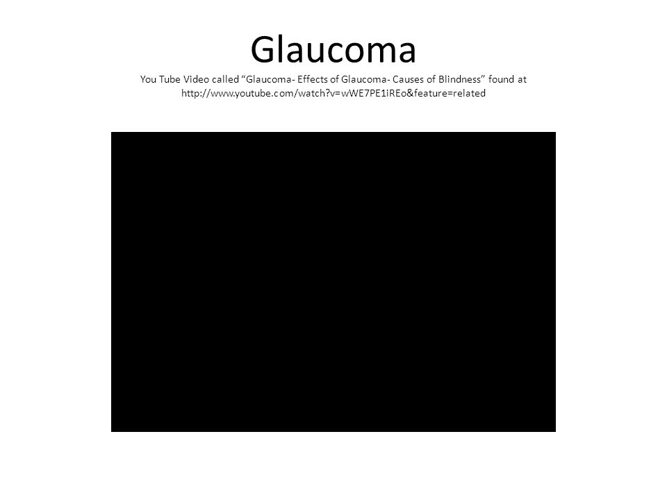 Glaucoma You Tube Video called Glaucoma- Effects of Glaucoma- Causes of Blindness found at http://www.youtube.com/watch?v=wWE7PE1iREo&feature=related