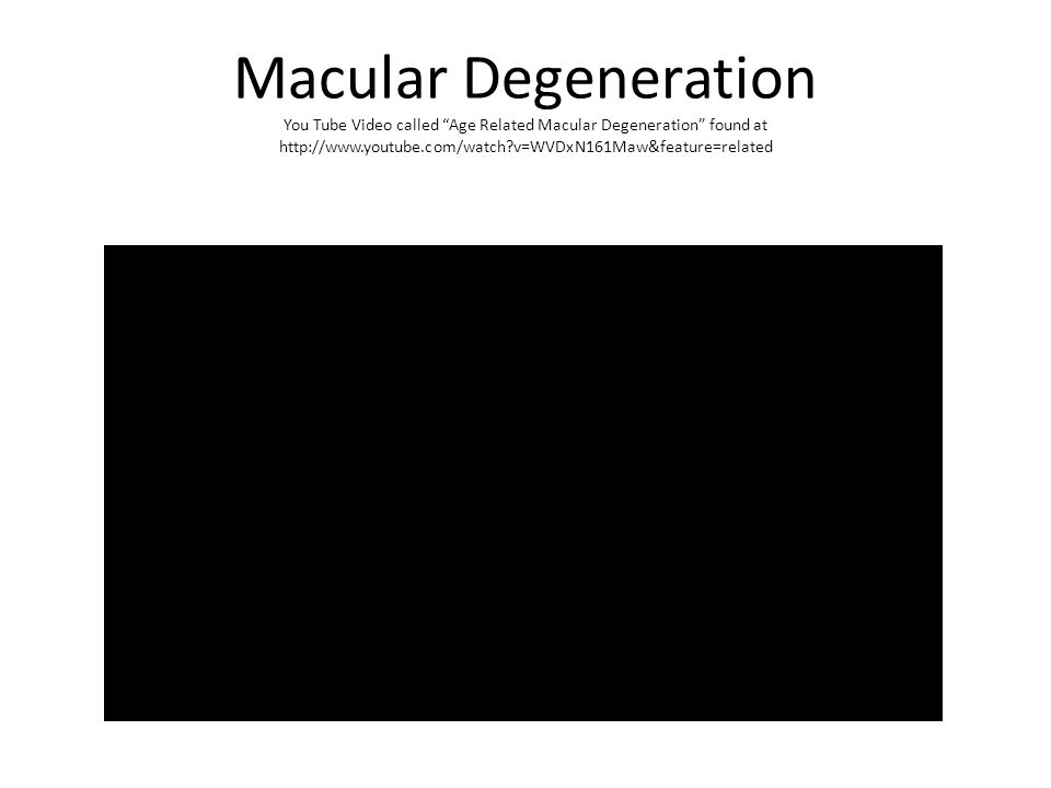 Macular Degeneration You Tube Video called Age Related Macular Degeneration found at http://www.youtube.com/watch?v=WVDxN161Maw&feature=related