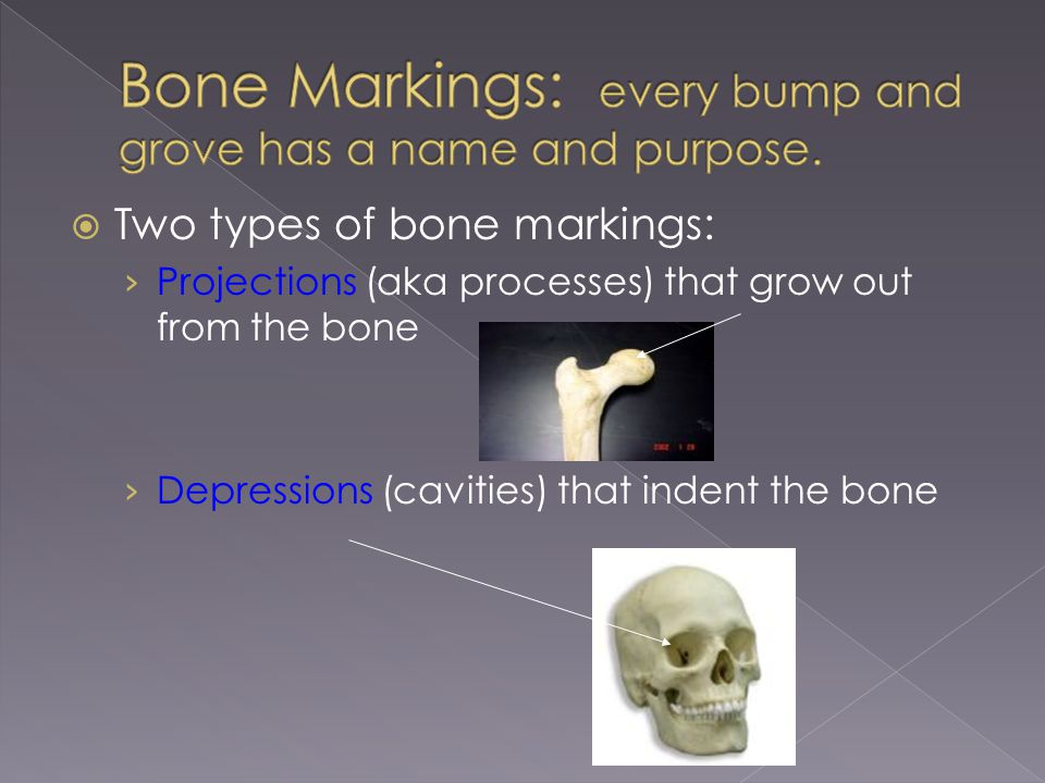  Two types of bone markings: › Projections (aka processes) that grow out from the bone › Depressions (cavities) that indent the bone
