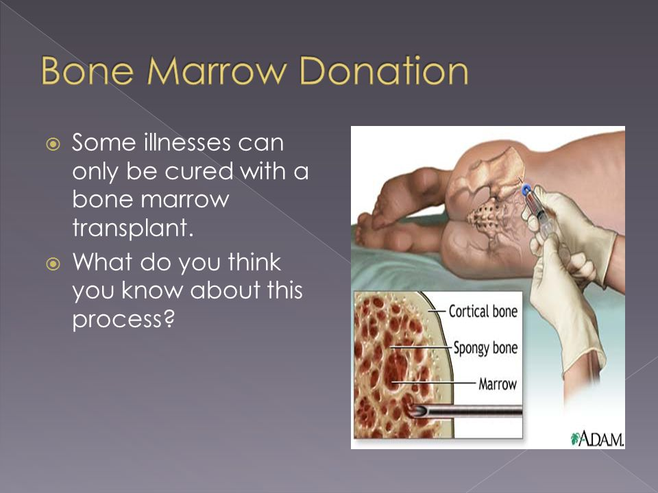  Some illnesses can only be cured with a bone marrow transplant.  What do you think you know about this process?