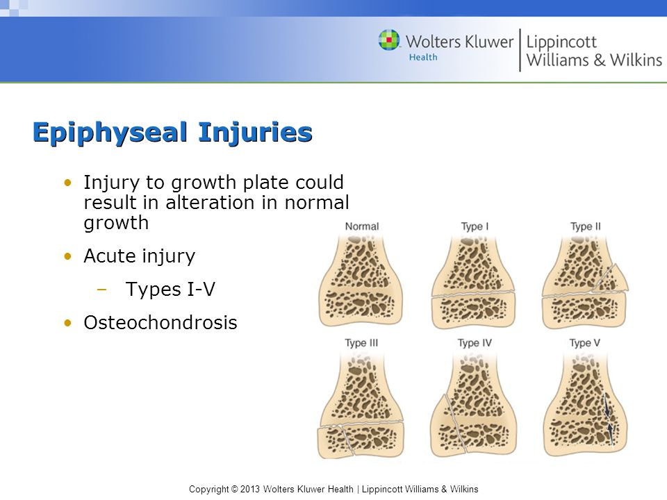 Copyright © 2013 Wolters Kluwer Health | Lippincott Williams & Wilkins Osteopenia –Reduced bone mineral density that predisposes individual to fractur