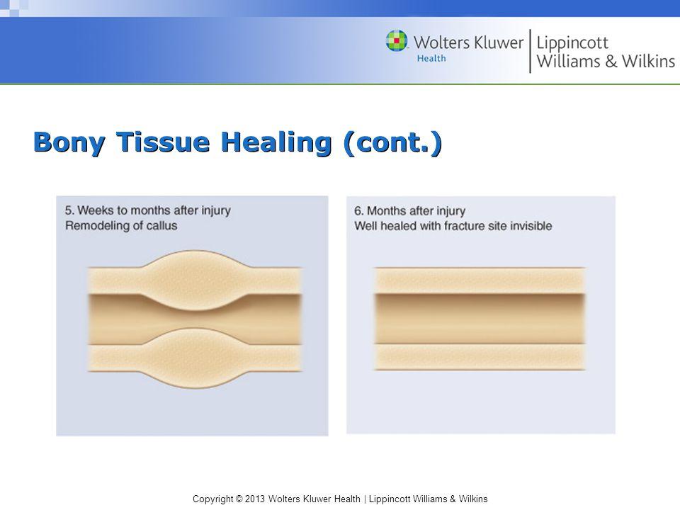 Copyright © 2013 Wolters Kluwer Health | Lippincott Williams & Wilkins Bony Tissue Healing (cont.)