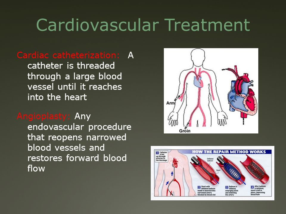 Cardiovascular Treatment Cardiac catheterization: A catheter is threaded through a large blood vessel until it reaches into the heart Angioplasty: Any endovascular procedure that reopens narrowed blood vessels and restores forward blood flow