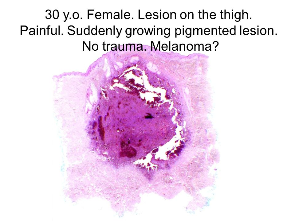 30 y.o. Female. Lesion on the thigh. Painful. Suddenly growing pigmented lesion. No trauma. Melanoma?