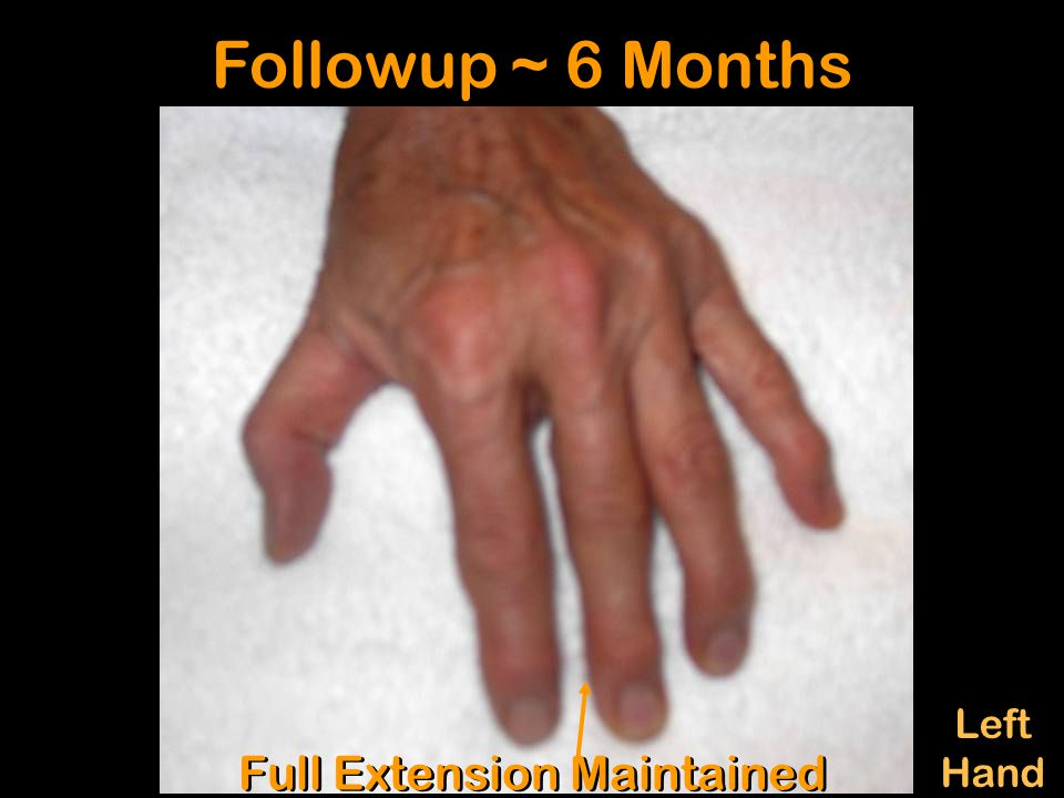 Left Hand Left Hand Followup ~ 6 Months Full Extension Maintained