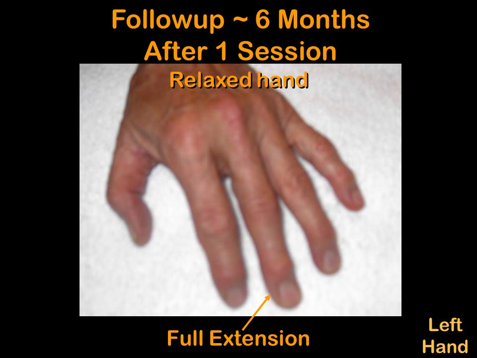 Followup ~ 6 Months After 1 Session Followup ~ 6 Months After 1 Session Left Hand Left Hand Full Extension Relaxed hand