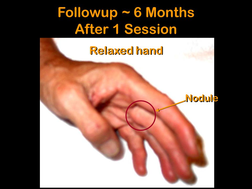 Relaxed hand Followup ~ 6 Months After 1 Session Followup ~ 6 Months After 1 Session Nodule