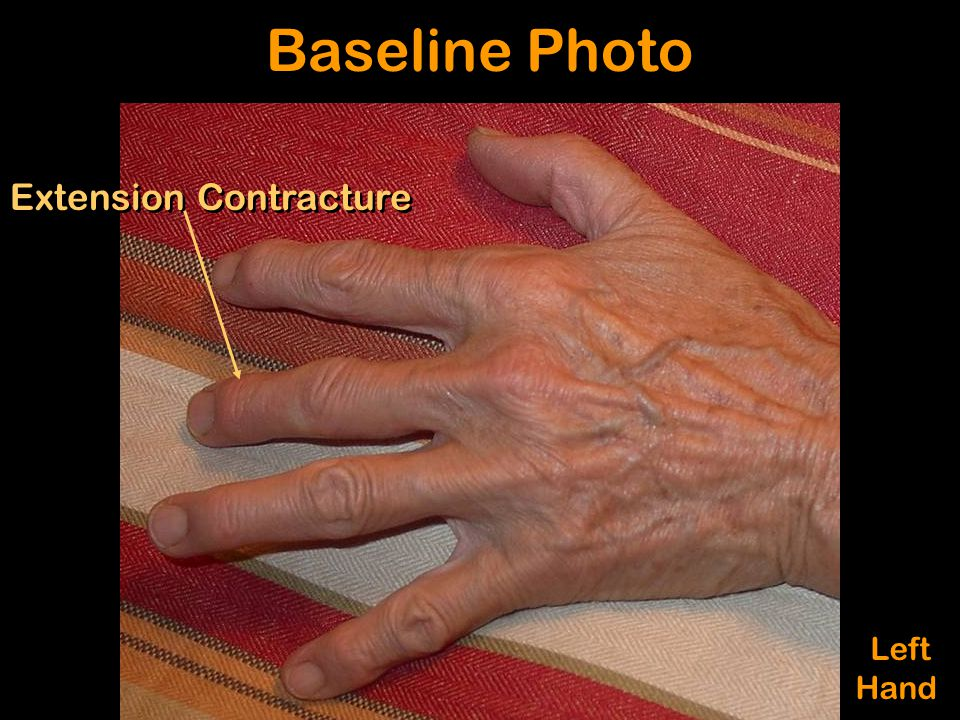 Extension Contracture Baseline Photo Left Hand Left Hand