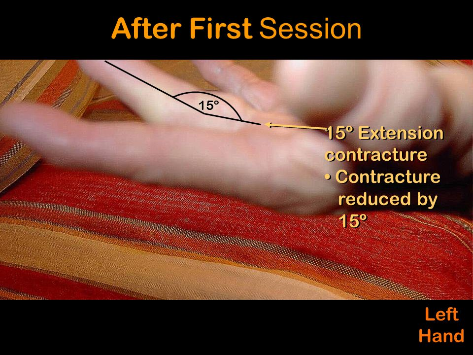 Left Hand Left Hand 15º Extension contracture Contracture reduced by 15º 15º Extension contracture Contracture reduced by 15º After First Session 15º