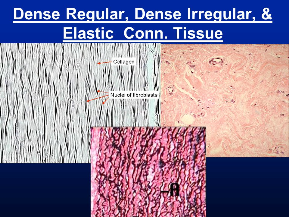 Dense Regular, Dense Irregular, & Elastic Conn. Tissue