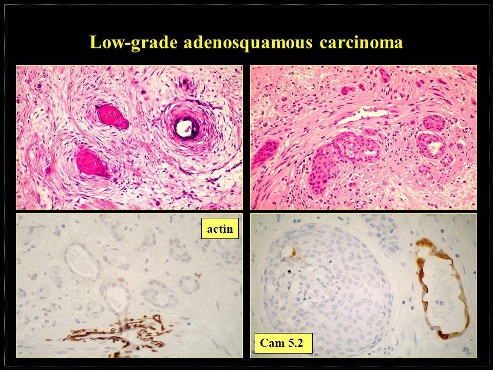 Low-grade adenosquamous carcinoma actin Cam 5.2