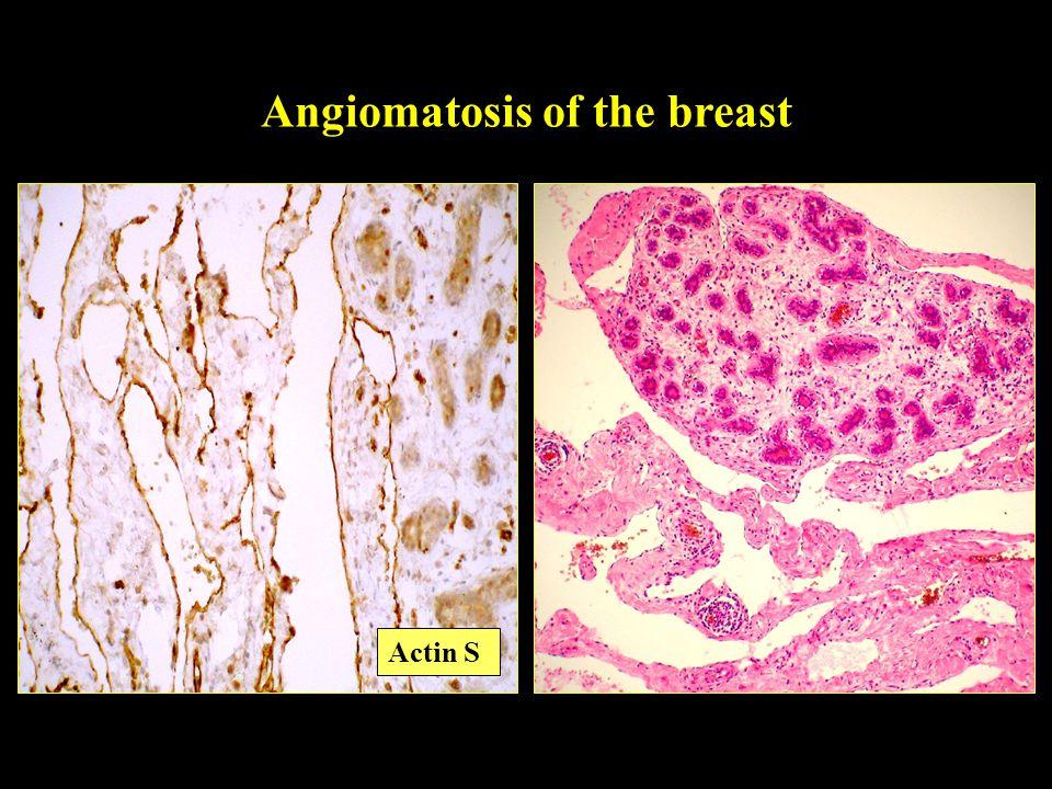 Angiomatosis of the breast Actin S