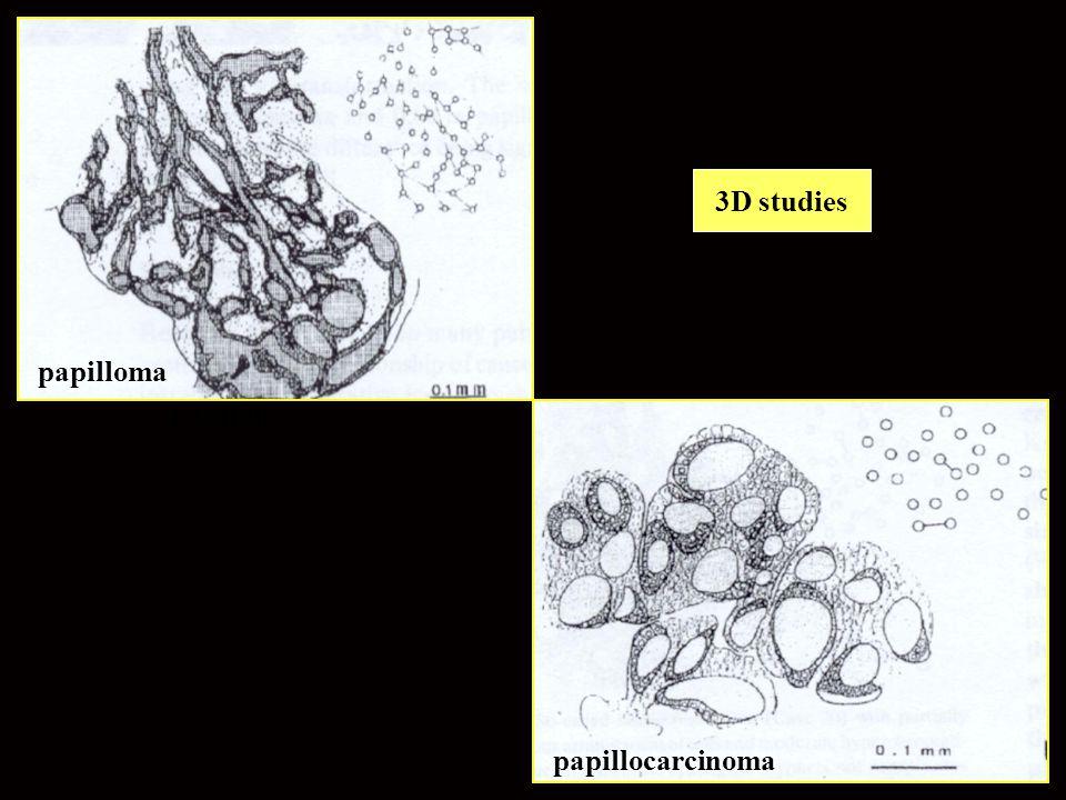 3D studies papilloma papilom papillocarcinoma