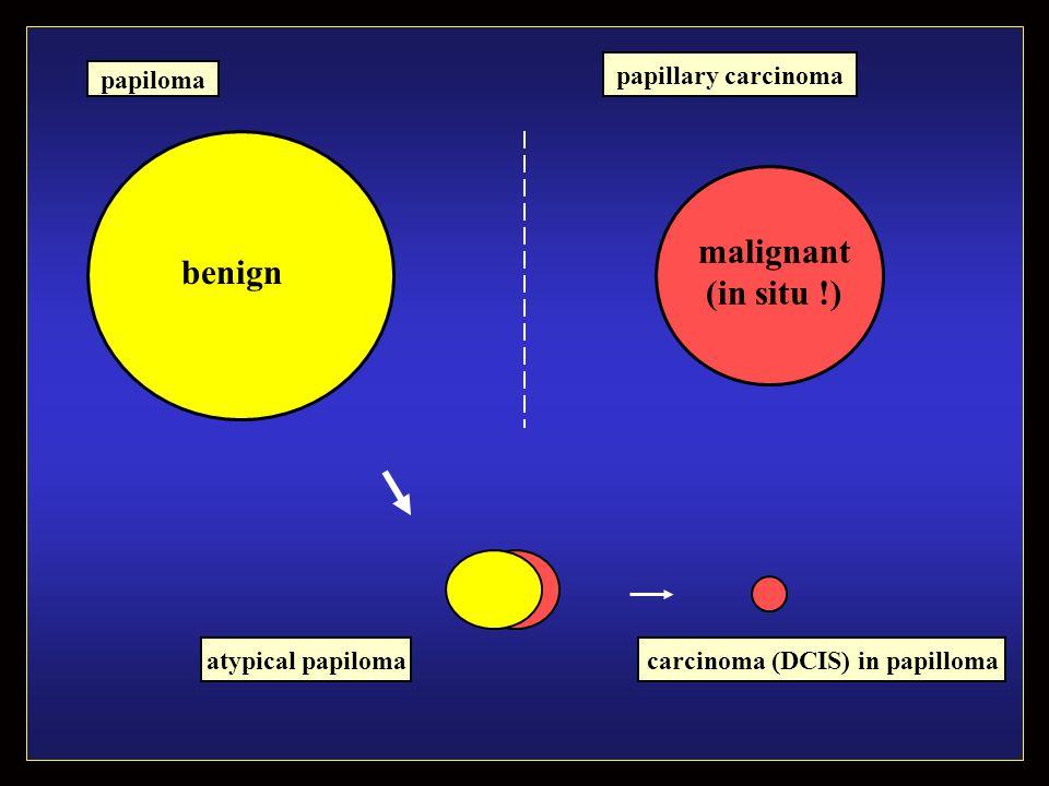benign malignant (in situ !) atypical papiloma papiloma carcinoma (DCIS) in papilloma papillary carcinoma
