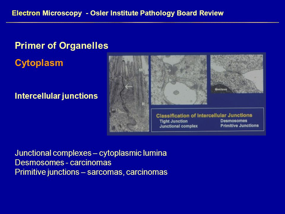 Electron Microscopy - Osler Institute Pathology Board Review Primer of Organelles Cytoplasm Intercellular junctions Junctional complexes – cytoplasmic