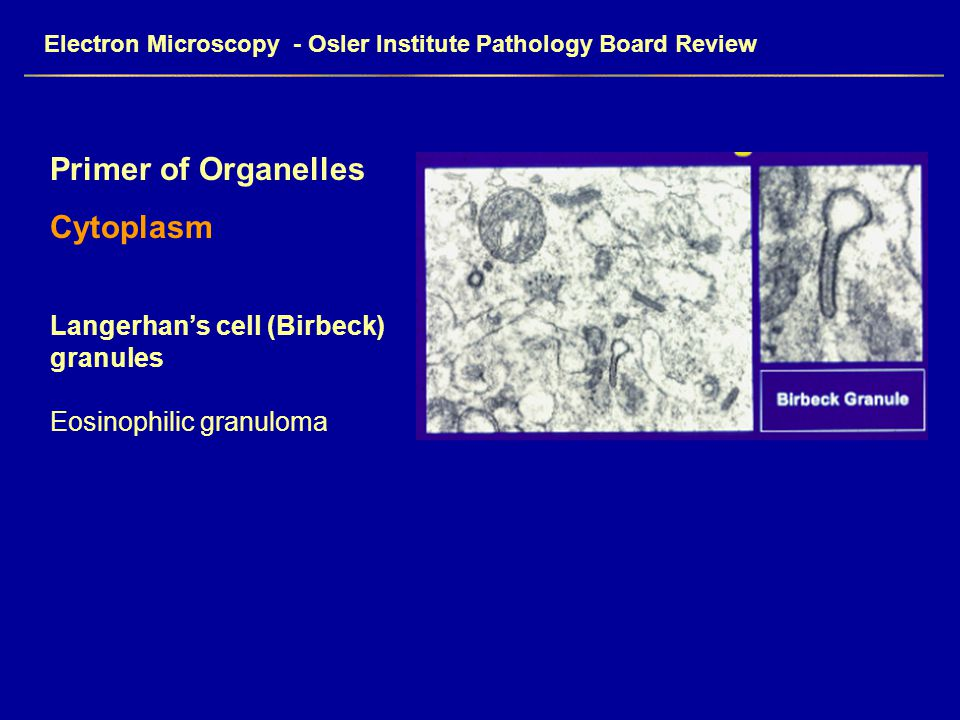 Electron Microscopy - Osler Institute Pathology Board Review Primer of Organelles Cytoplasm Langerhan's cell (Birbeck) granules Eosinophilic granuloma