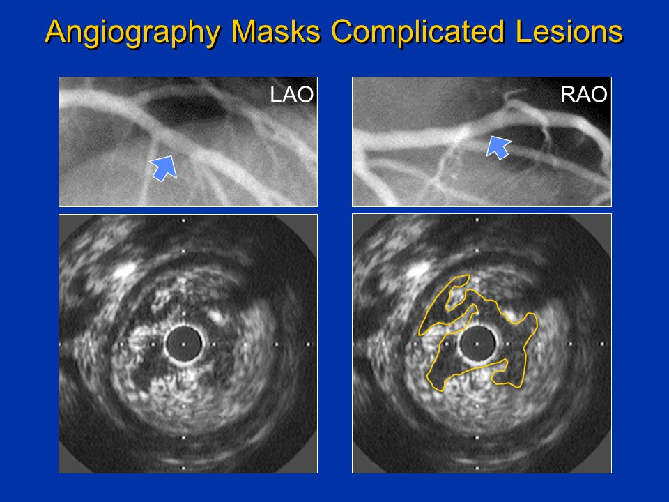 LAORAO Angiography Masks Complicated Lesions