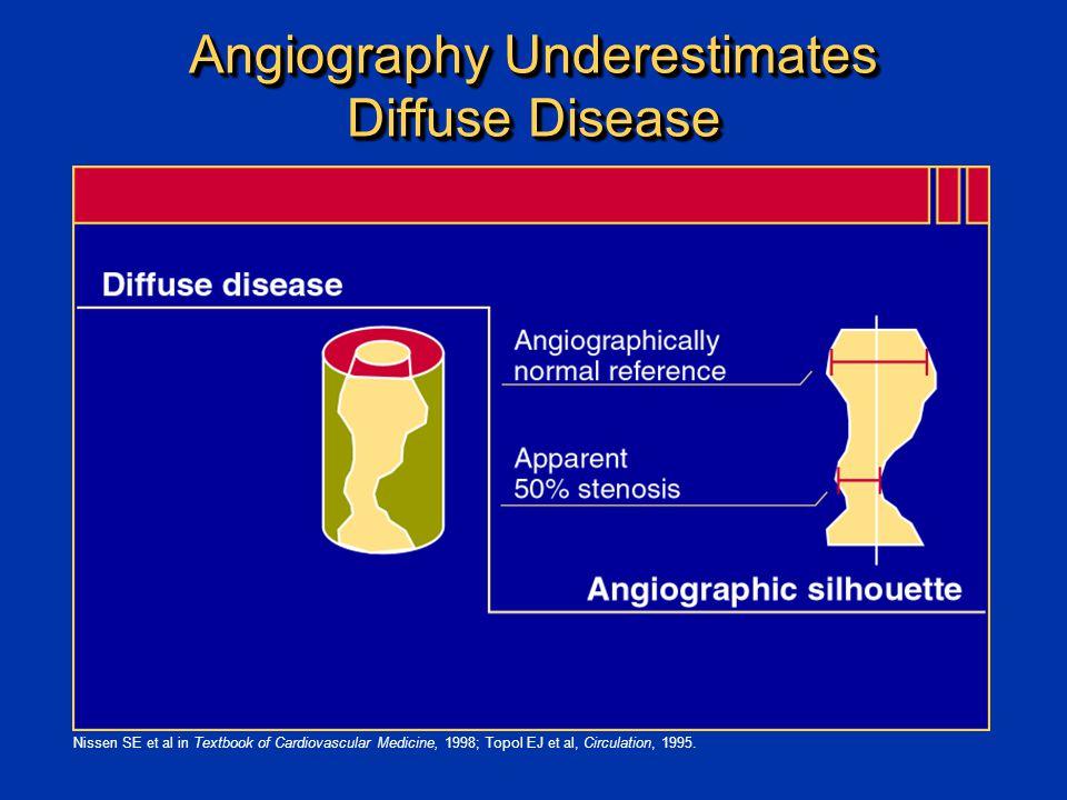 Angiography Underestimates Diffuse Disease Nissen SE et al in Textbook of Cardiovascular Medicine, 1998; Topol EJ et al, Circulation, 1995.