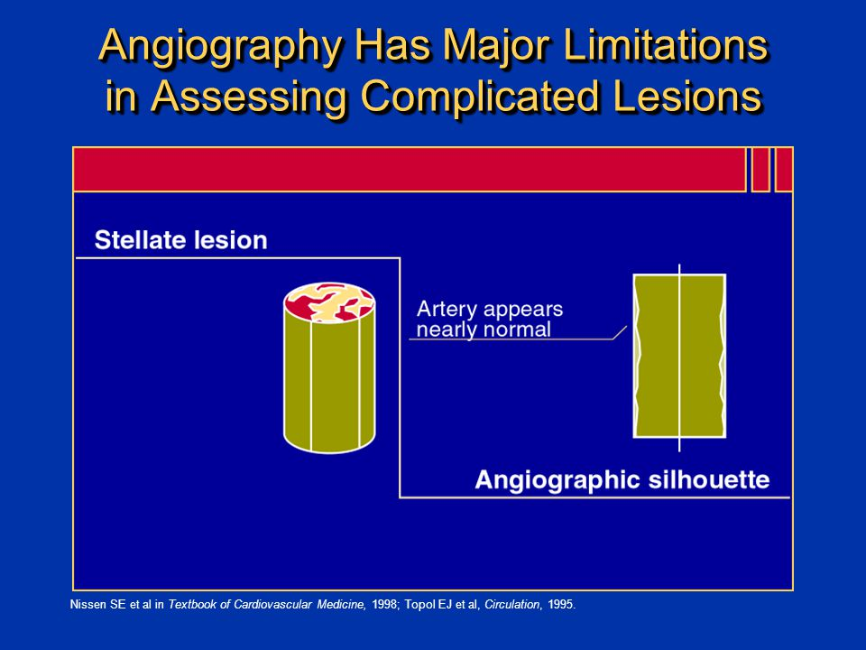 Angiography Has Major Limitations in Assessing Complicated Lesions Nissen SE et al in Textbook of Cardiovascular Medicine, 1998; Topol EJ et al, Circulation, 1995.