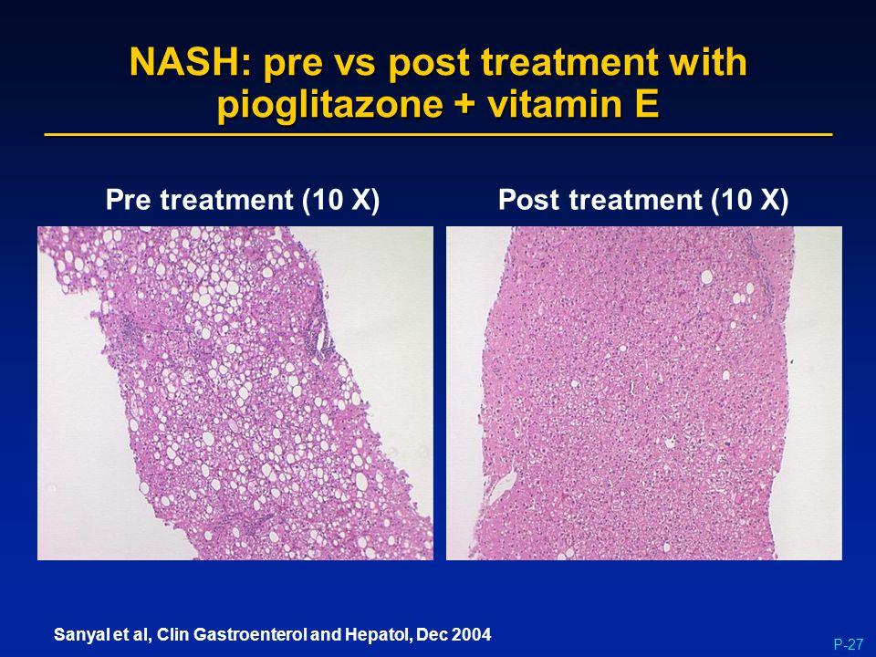 P-27 NASH: pre vs post treatment with pioglitazone + vitamin E Pre treatment (10 X)Post treatment (10 X) Sanyal et al, Clin Gastroenterol and Hepatol,