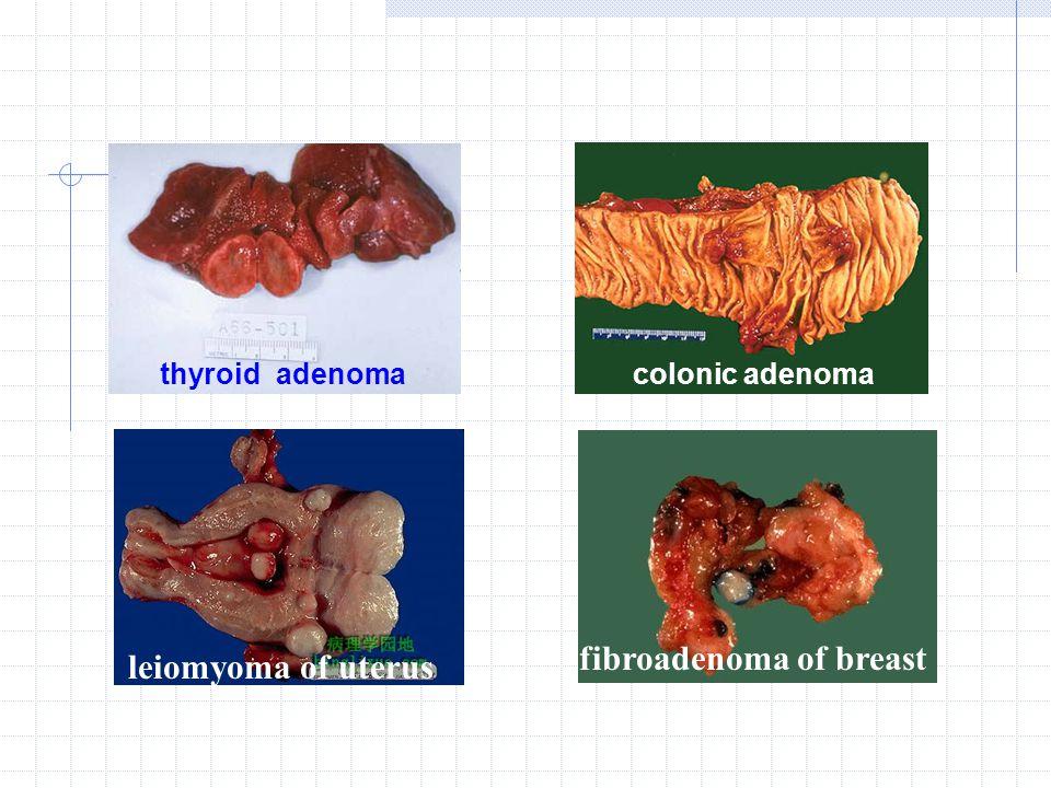 thyroid adenomacolonic adenoma leiomyoma of uterus fibroadenoma of breast
