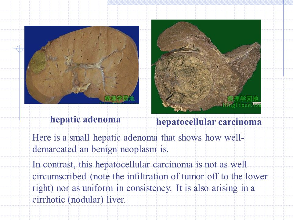 hepatic adenoma hepatocellular carcinoma Here is a small hepatic adenoma that shows how well- demarcated an benign neoplasm is. In contrast, this hepa