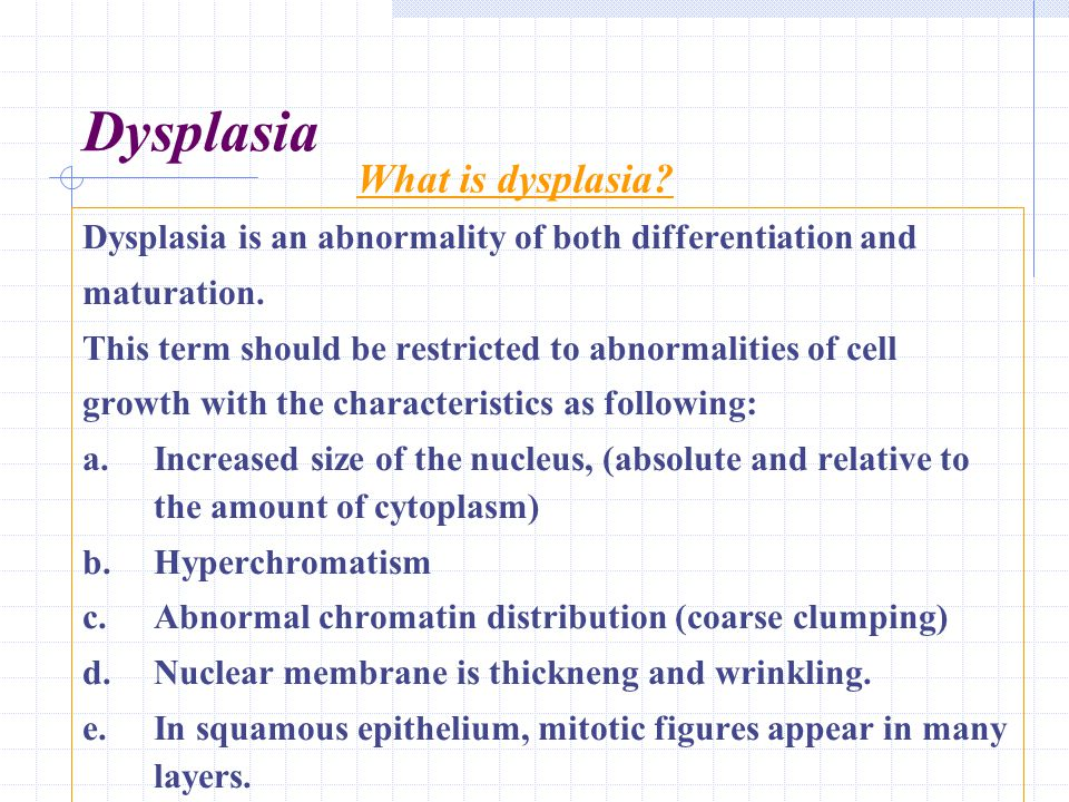 Dysplasia Dysplasia is an abnormality of both differentiation and maturation. This term should be restricted to abnormalities of cell growth with the