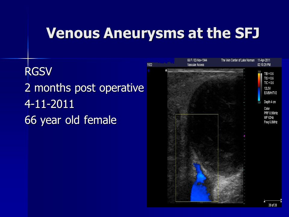 Venous Aneurysms at the SFJ RGSV 2 months post operative 4-11-2011 66 year old female
