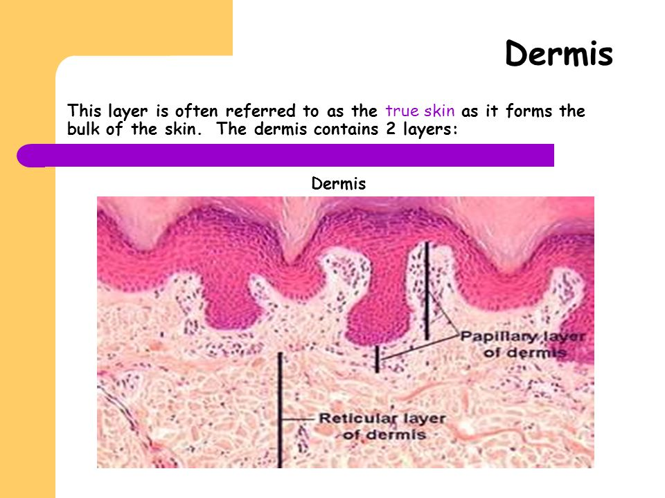 This layer is often referred to as the true skin as it forms the bulk of the skin. The dermis contains 2 layers: Dermis