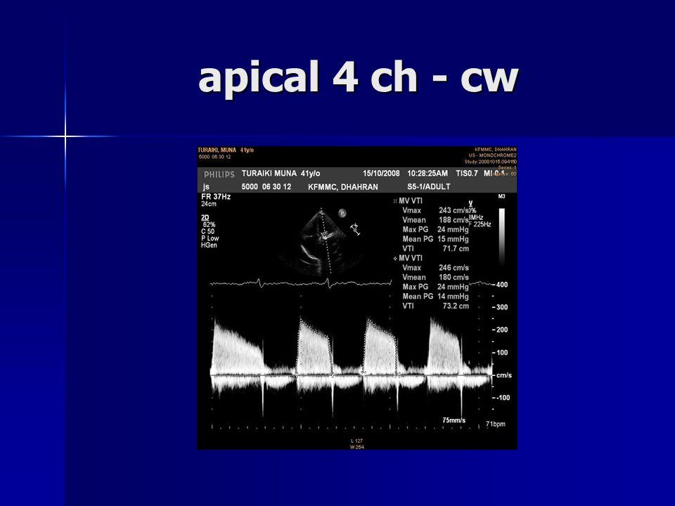 apical 4 ch - cw