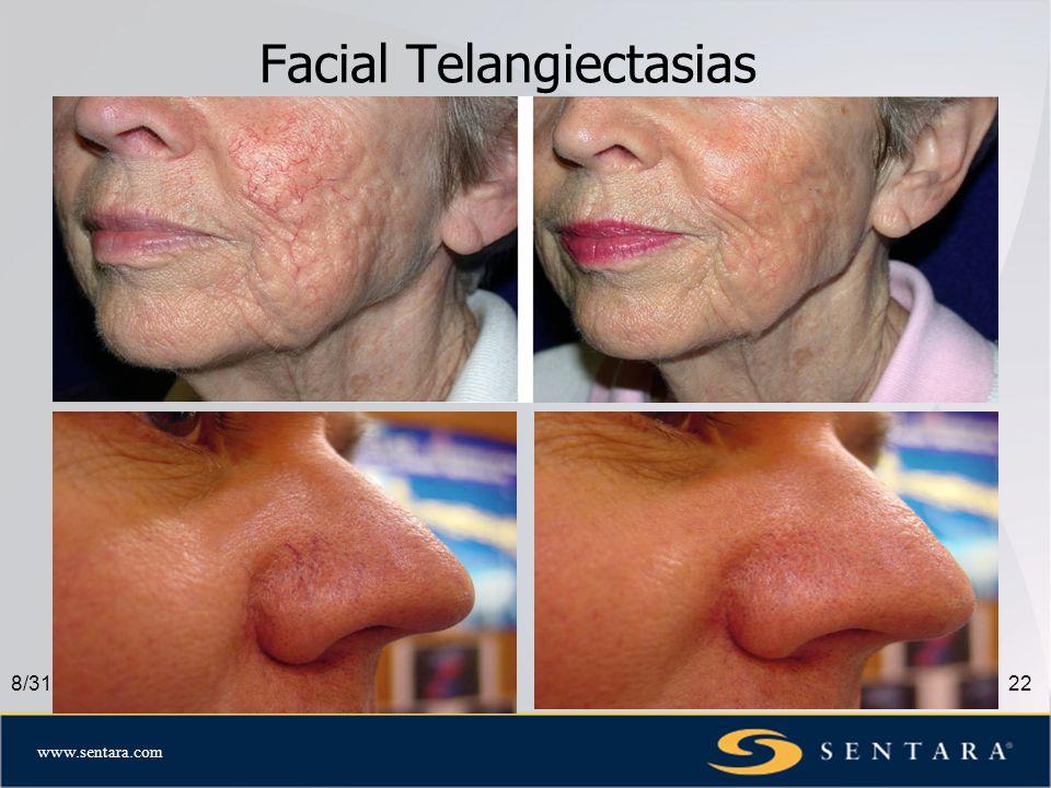 www.sentara.com Facial Telangiectasias 8/31/0822