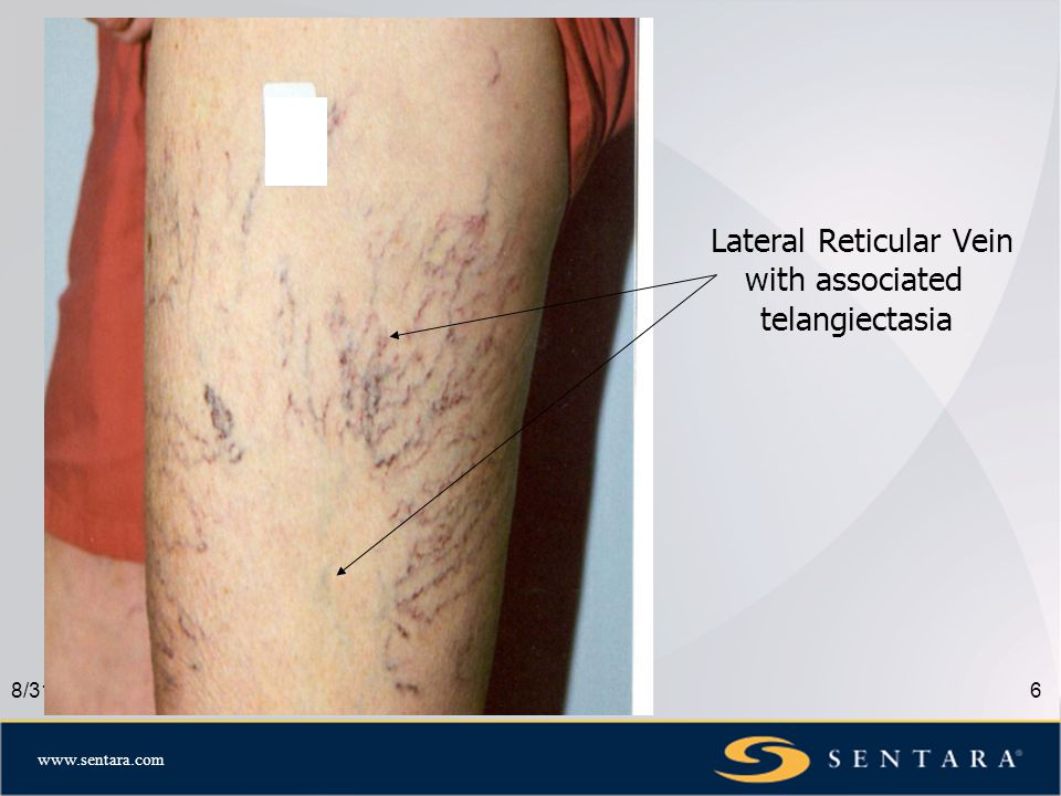 www.sentara.com 8/31/087 Small Vein Treatment Options Sclerotherapy- still the Gold Standard Lasers- great adjunct to treatment Non lasers- IPL, Ohmic Thermolysis, Vascutouch Microphlebectomy- for large reticular veins Combination Therapy- BEST OPTION for quickest and cosmetically superior results