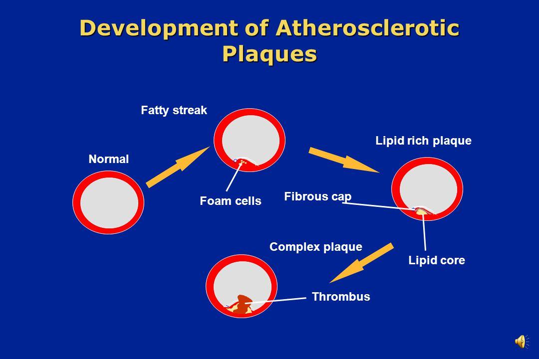 Normal Fatty streak Lipid rich plaque Complex plaque Thrombus Lipid core Fibrous cap Foam cells Development of Atherosclerotic Plaques