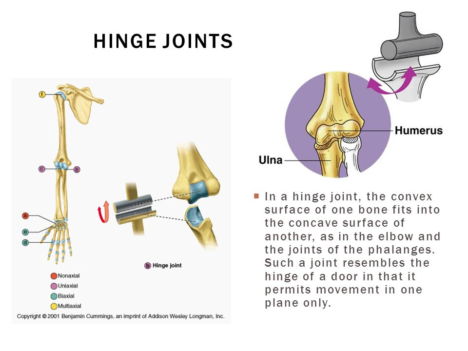  In a hinge joint, the convex surface of one bone fits into the concave surface of another, as in the elbow and the joints of the phalanges. Such a j