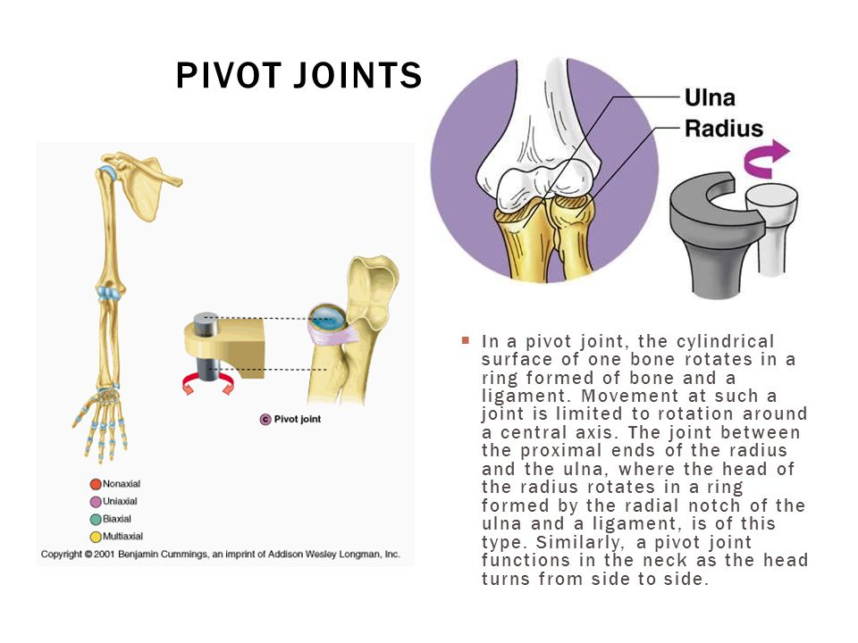  In a pivot joint, the cylindrical surface of one bone rotates in a ring formed of bone and a ligament. Movement at such a joint is limited to rotati