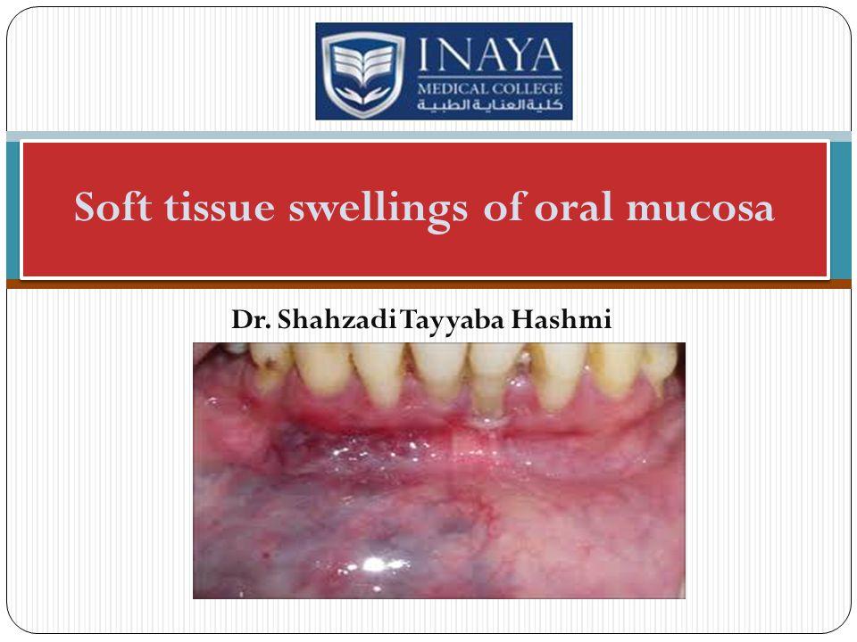 Dr. Shahzadi Tayyaba Hashmi Soft tissue swellings of oral mucosa