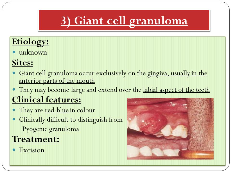 3) Giant cell granuloma Etiology: unknown Sites: Giant cell granuloma occur exclusively on the gingiva, usually in the anterior parts of the mouth They may become large and extend over the labial aspect of the teeth Clinical features: They are red-blue in colour Clinically difficult to distinguish from Pyogenic granuloma Treatment: Excision Etiology: unknown Sites: Giant cell granuloma occur exclusively on the gingiva, usually in the anterior parts of the mouth They may become large and extend over the labial aspect of the teeth Clinical features: They are red-blue in colour Clinically difficult to distinguish from Pyogenic granuloma Treatment: Excision