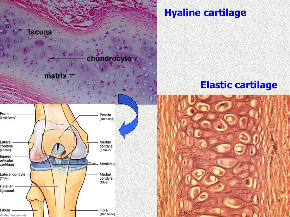 Hyaline cartilage Elastic cartilage