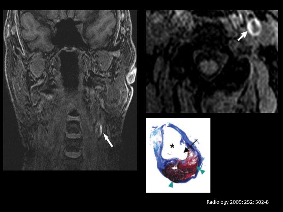 Radiology 2009; 252: 502-8