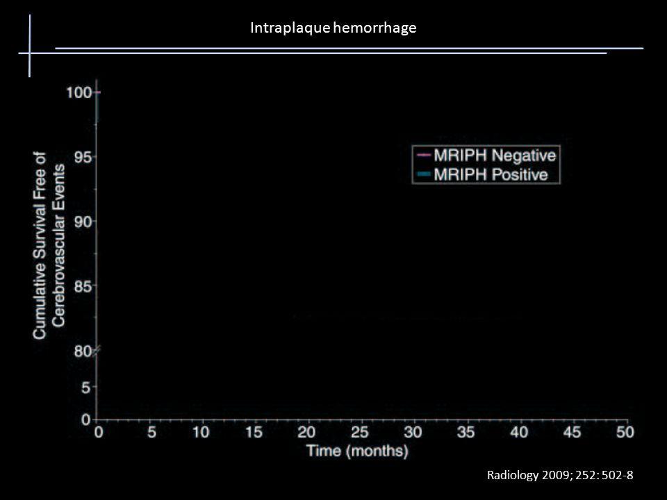 Intraplaque hemorrhage Radiology 2009; 252: 502-8